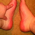 Diabetic Neuropathy: The Nerve Damage of Diabetes In the feet